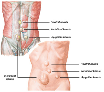 hiatus hernia london | hernia operation | hernia surgery london, Cephalic Vein