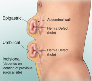 Adult herniated belly button